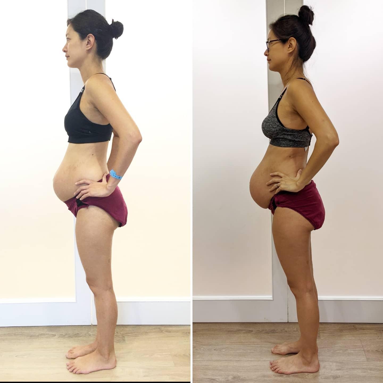 Janet比對4年前生產後(左)以及這次產後一周的身材。圖:翻攝自Janet臉書